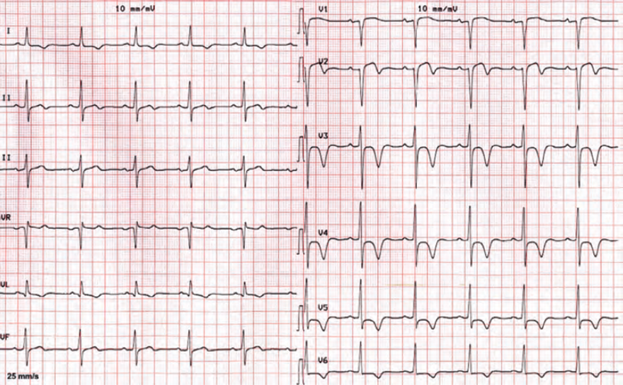 ECG cardiac ischemia, sinus rhythm, T wave inversion (I, aVL, V2-V6), ST elevation (V1-V2), DDX ischemia, or acute STEMI