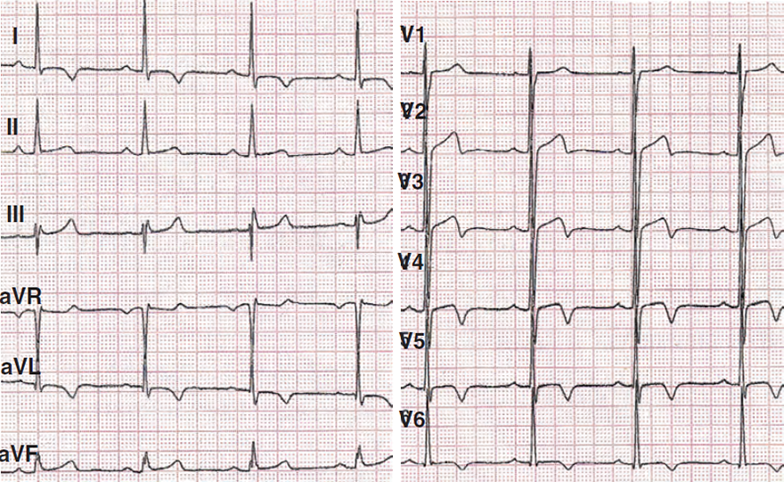 ECG ischemia, unstable angina pectoris, inversion T wave (I, aVL, V2-V6)