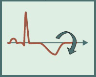 ECG criteria, Inverted T wave NSTEMI (Non ST elevation Myocardial infarction )