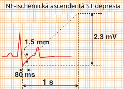 Rapid normal upsloping ST segment depression, A benign response