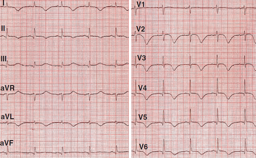 ECG inverted - negatvie T wave and subendocardial ischemia