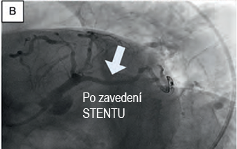 coronary angiogram after percutaneous coronary intervention (PCI) and stenting