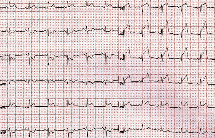 ECG antero-lateral STEMI infarction, ST elevation (V2-V5, I, aVL), reciprocal ST depression (II, III, aVL), culprit artery - vessel: LAD between S1 and D1