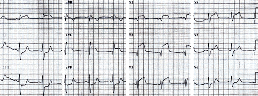 ECG acute antero-lateral STEMI, proximal left anterior descending artery (LAD), proximal to D1, S1