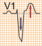 ECG criteria V1 left bundle branch block (LBBB) and STEMI infarction