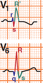 ECG RBBB and STEMI infarction