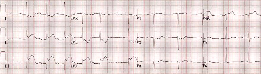 ECG acute inferior (ST elevation II, III, aVF) and right ventricular STEMI (ST elevation V4R) infarction
