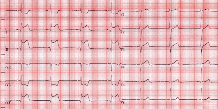 ECG inferior and right ventricular infarction STEMI, ST elevation, reciprocal ST depression