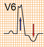 ECG criteria LBBB without STEMI (V6), ST depression