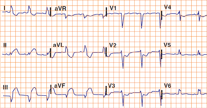 ECG Sgarbossa Criteria, acute STEMI and LBBB, Concordant ST depression greater than 1 mm in V1-V3 (score 3)