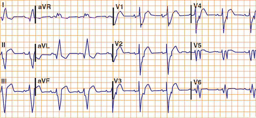ECG Sgarbossa Criteria, acute STEMI and LBBB, Excessively discordant ST elevation greater than 5 mm
