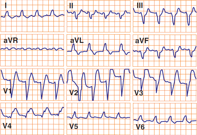 ECG sgarbossa criteria, STEMI and LBBB, Concordant ST elevation greater than 1mm, Excessively discordant ST elevation greater than 5 mm