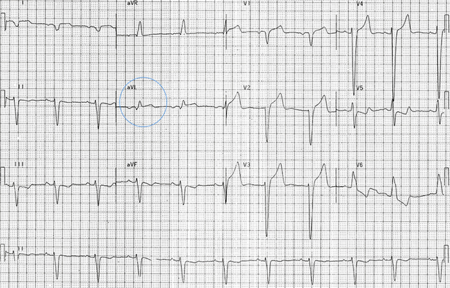 ECG positive sgarbossa criteria with LBBB, 1mm concordant ST elevation in aVL