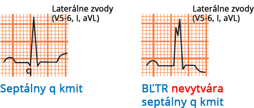 LBBB and septal Q wave