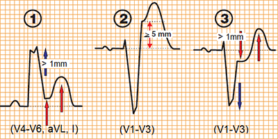 ECG Sgarbossa criteria STEMI infarction with LBBB, ST elevation, concordant ST depression