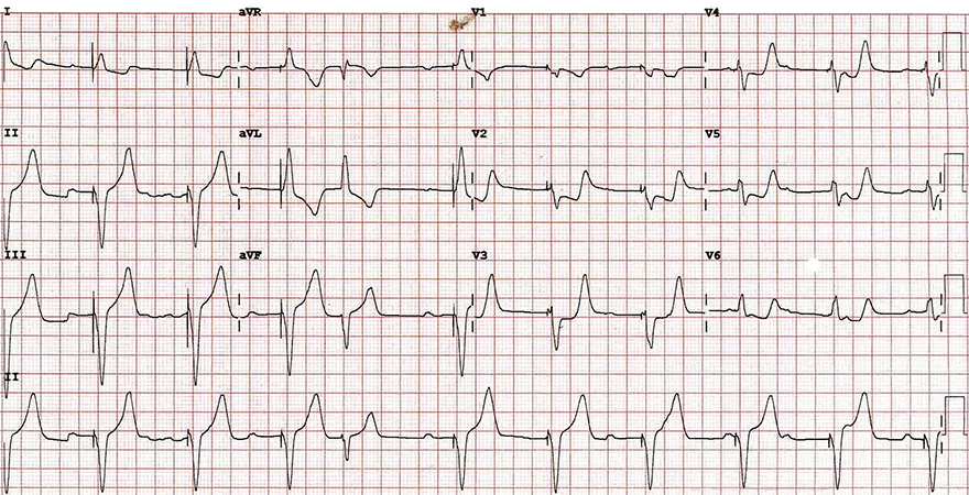 ECG Positive Sgarbossa criteria in a patient with a ventricular paced rhythm, concordant ST depression
