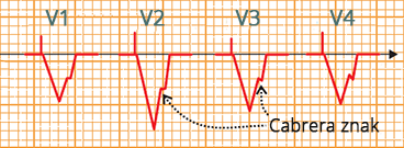 Cabrera sign (shelf-like notch on ascending S wave), old myocardial infarction during right ventricular pacing,