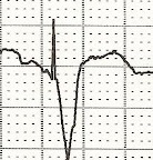 ECG ventricular paced rhythom with LBBB pattern