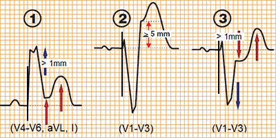 ECG Sgarbossa criteria STEMI infarction with ventricular paced rhythm, ST elevation, concordant ST depression