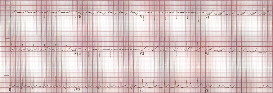 ECG first stage myopericarditis, concave ST elevation, PQ PR depression aVR V1, fish hook pattern