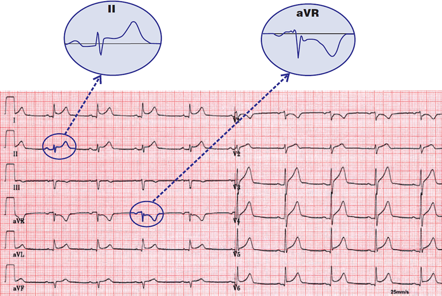 ECG acute pericarditis, first (1) stage, concave ST elevation, PR PQ elevation (aVR, V1), spodick sign