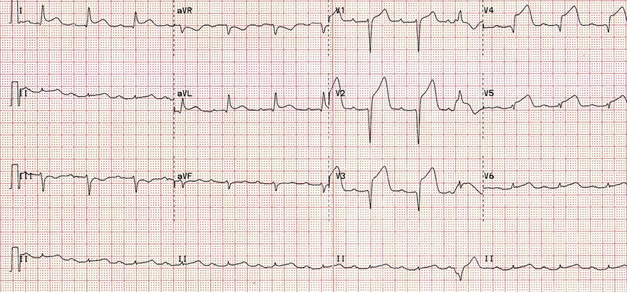 ECG antero-lateral STEMI infarction, ST elevation, reciprocal ST depression change