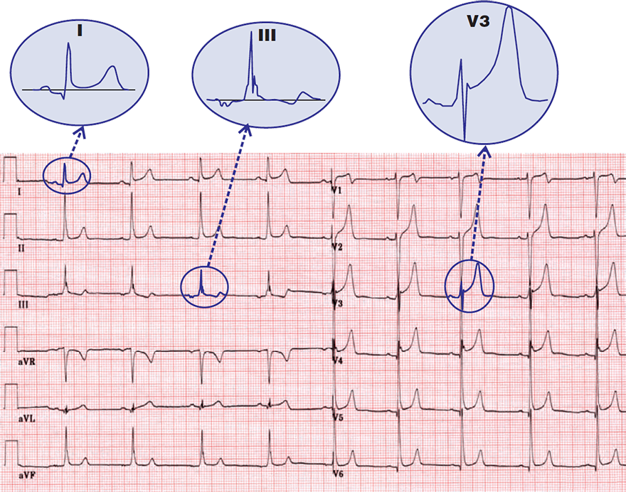 ECG benign early repolarisation, concave ST elvation, fish hook pattern, ST / T ratio