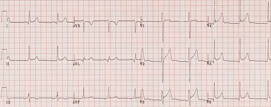 ECG benign early repolarisation and pericarditis, fish hook pattern, notch V4, ST segment T wave ratio