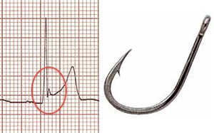 ECG benign early repolarisation, fish hook pattern V4