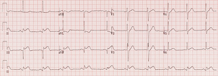 ECG inferior STEMI, concave ST elevation