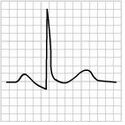 ECG pericarditis stage 2, normalization ST changes, generalized T wave flattening