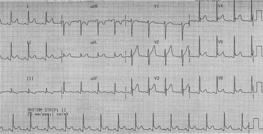 ECG pericardigis and benign early repolarisation