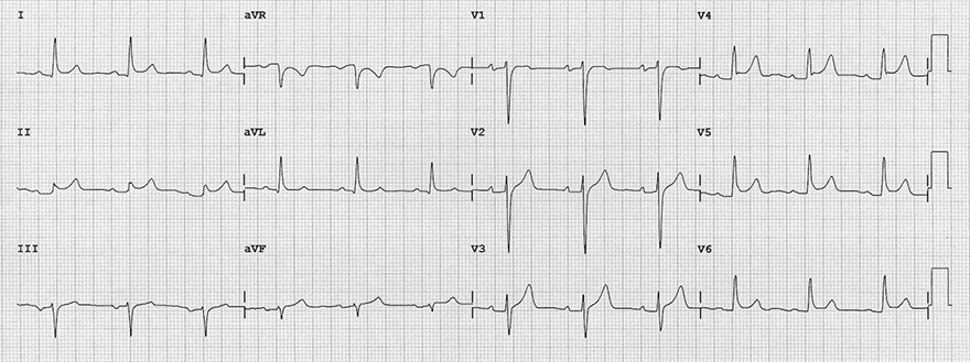 ECG acute pericarditis 1 stage, concave ST elevation, ST/T ratio