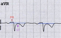 ECG pericarditis Reciprocal PR elevation and ST depression in aVR