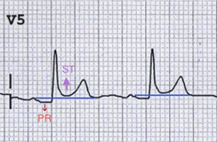 ECG pericarditis PR depression and ST elevation in V5