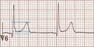 ECG benign early repolarization ST / T wave ratio