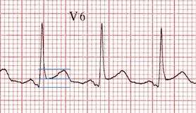 ECG pericarditis ST / T wave ratio