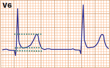 ECG benign early repolarisation ST segment / T wave ratio