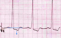 ECG Left ventricular strain pattern, ST depression, T wave inversion in lateral leads