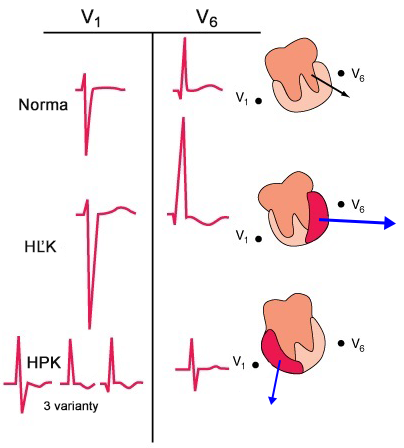 ECG left ventricular hypertrophy, right ventricular hypertrophy, pattern features V1, V6