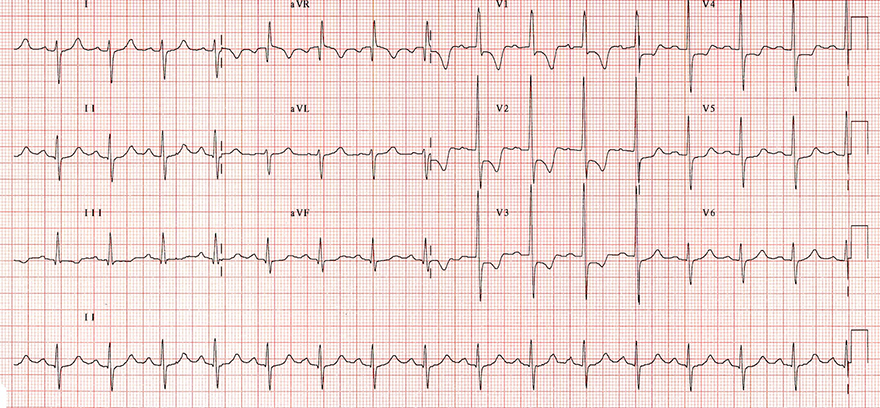 ECG right ventricular hypertrophy, Right axis deviation, Dominant R wave in V1, Dominant S wave in V6, Right ventricular strain pattern