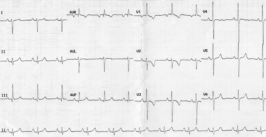 ECG right ventricular hypertrophy, P pulmonale, Right axis deviation, Dominant R wave in V1, Dominant S wave in V6, Right ventricular strain pattern