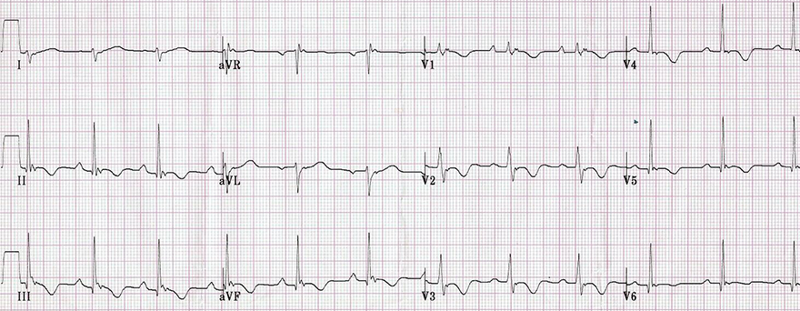 ECG right ventricular hypertrophy (RVH), arrhythmogenic right ventricular cardiomyopathy, dyplasia (ARVD), Right axis deviation, R S ratio
