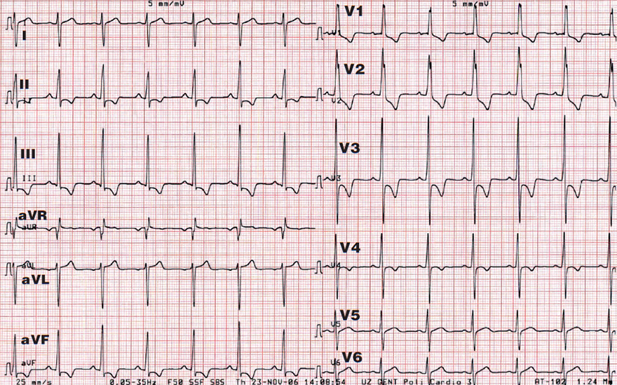 ECG right ventricular hypertrophy, Right axis deviation, Dominant R wave in V1, Dominant S wave in V6, Right ventricular strain pattern with ST depression and T-wave inversion in V1-4