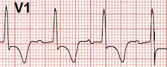 ECG right ventricular strain pattern, right ventricular hypertrophy