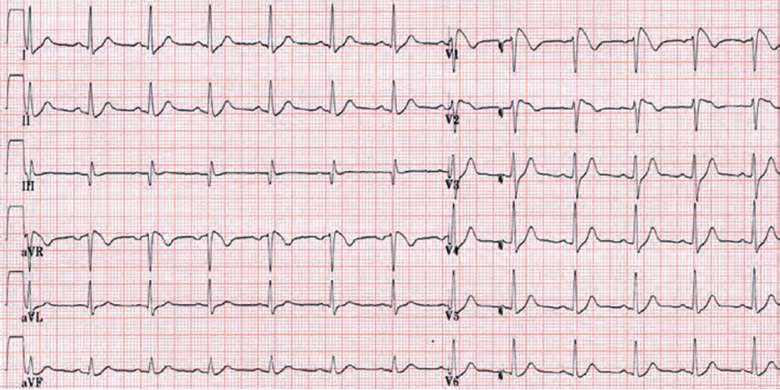 ECG pattern Brugada syndrome type 1
