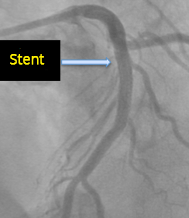 Wellens syndrom, critical stenosis LAD after complete recanalization after stent
