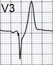 ECG de winter T wave