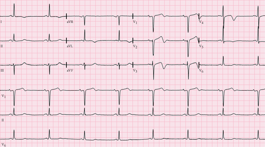 ECG (V2-V3) Wellens syndrome type A pattern (type II), wellens sign, wellens warning, wellens waves