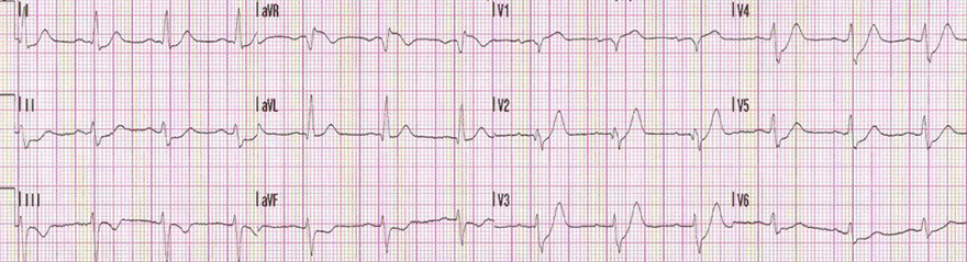 ECG De Winters peaked T waves vs. Wellens syndrome inverted T wave